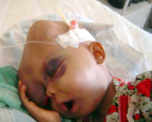 Een DU-slachtoffertje in het ziekenhuis. Een relatief mild plaatje tussen veel heftiger voorbeelden...